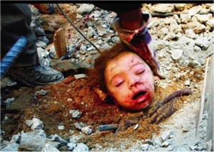 gaza-child-head